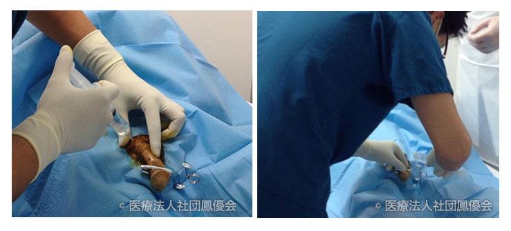 尿道ステント治療イメージ