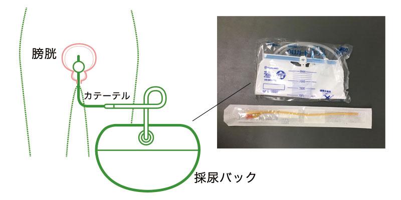 尿道カテーテル イメージ