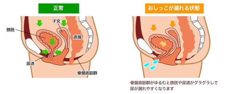 尿漏れイメージ